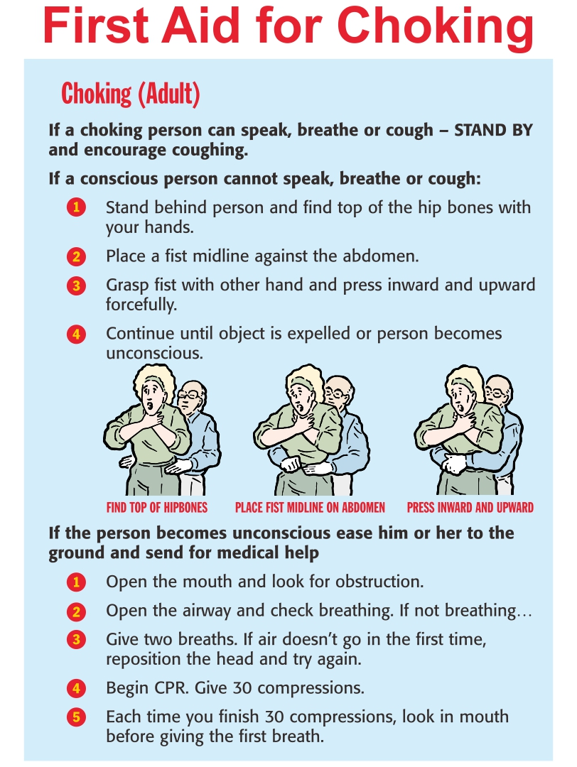 Printable First Aid Choking
