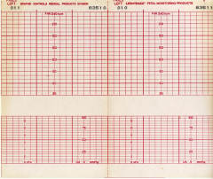 4 Images of Printable EKG Paper